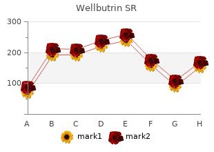 safe wellbutrin sr 150 mg
